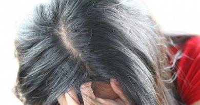 почему седеют волосы