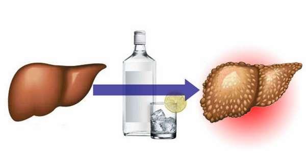 В правительстве обсуждается комплексная антиалкогольная программа