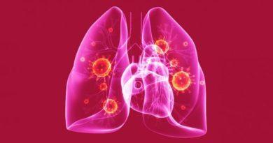 Смертность от туберкулеза в РФ снизилась на 64%
