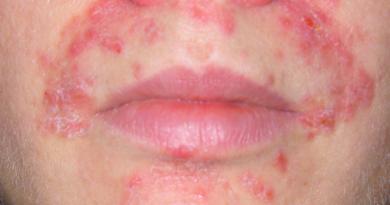 Герпетиформный дерматит