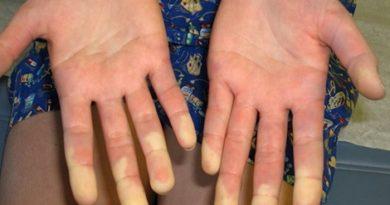 Смешанное заболевание соединительной ткани