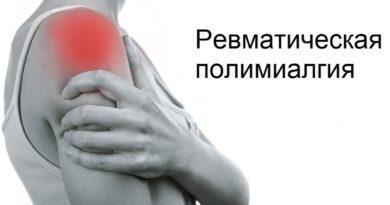 Ревматическая полимиалгия