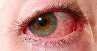 Cимпатическая офтальмия