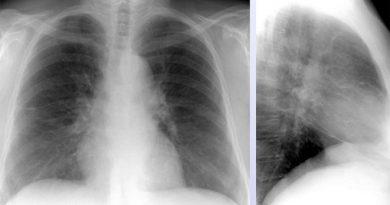 саркоидоз лёгких