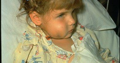 Гемофильная инфекция тип b (Hib)