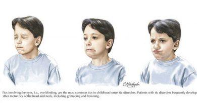 нервный тик у ребёнка