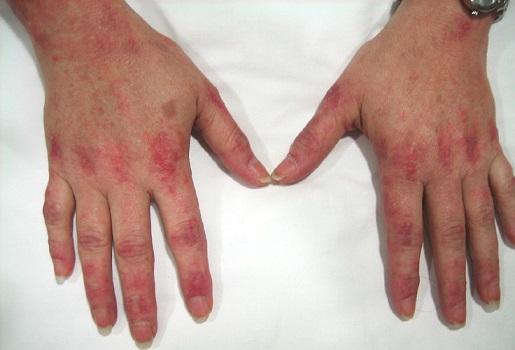 Воспалительные миопатии и ЖКТ