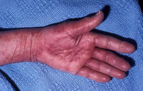 амилоидоз руки