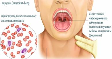 Эпштейна-Барр вирусная инфекция (инфекционный мононуклеоз)