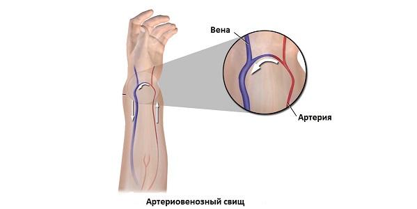 Артериовенозный свищ приобретенный