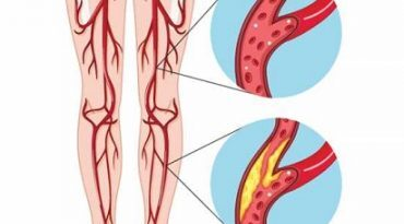 Болезнь периферической артерии