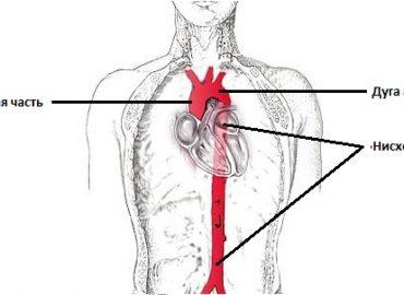 Расслоение аорты