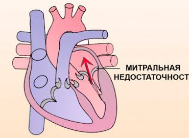 Ревматическая недостаточность митрального клапана