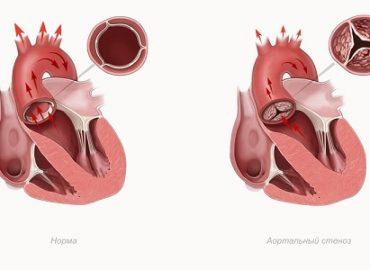 Ревматический аортальный стеноз