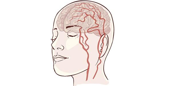 Субарахноидальное кровоизлияние у молодых пациентов