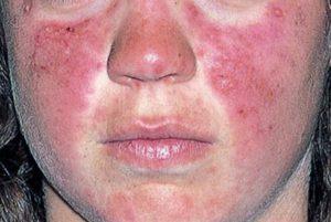 Топ-10 самых опасных болезней человека .Какая самая опасная болезнь в мире?