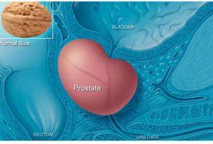 простата расположение