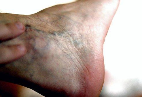 Отек ног: хроническая венозная недостаточность