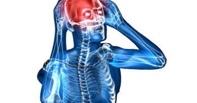Тромбоз церебральных вен