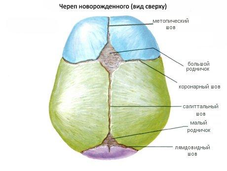 Широкие черепные швы у новорожденного